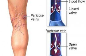 Do stockings help eliminate Varicose veins?