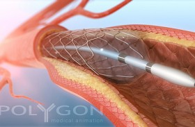 How Does Angioplasty Work?